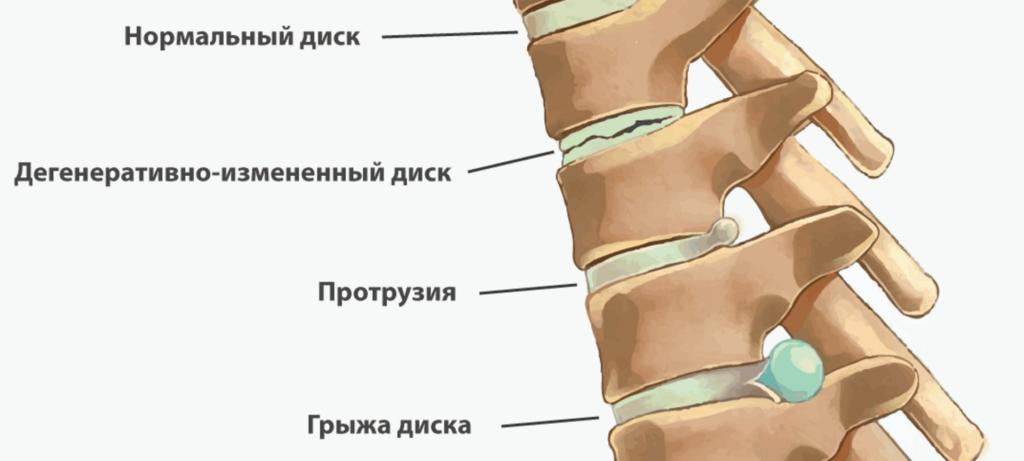 Становая тяга при протрузии и грыжах